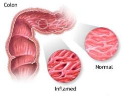 radang-usus-besar